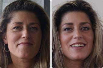 фото до и после гимнастики для лица Кэрол Мадджио