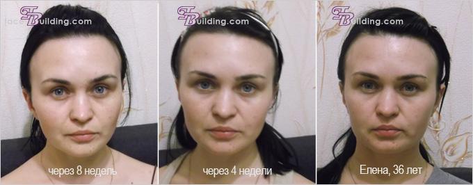 чайлдерс грир фото до и после