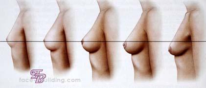 Возрастные изменения женской груди – Анатомия молочных желез женщины