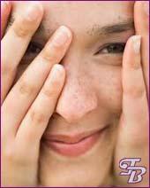 Как избавиться от пигментных пятен на лице в домашних условиях - Отбеливающая маска, крем